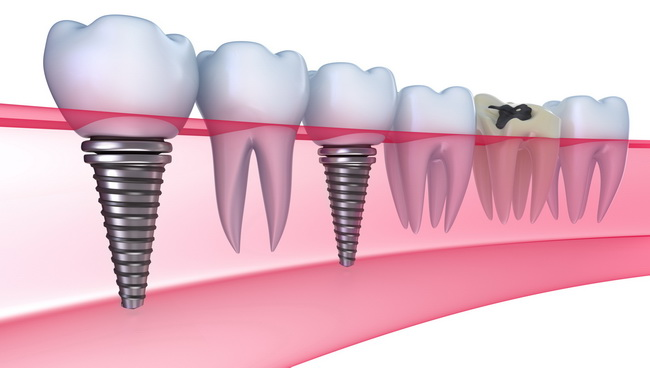 Dentist Montenegro Implantati